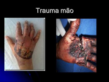 Trauma mão. Ossos do carpo Fratura escafoide FRATURAS DO ESCAFÓIDE O escafóide situa-se nas duas fileiras do carpo, articulando-se com cinco ossos.