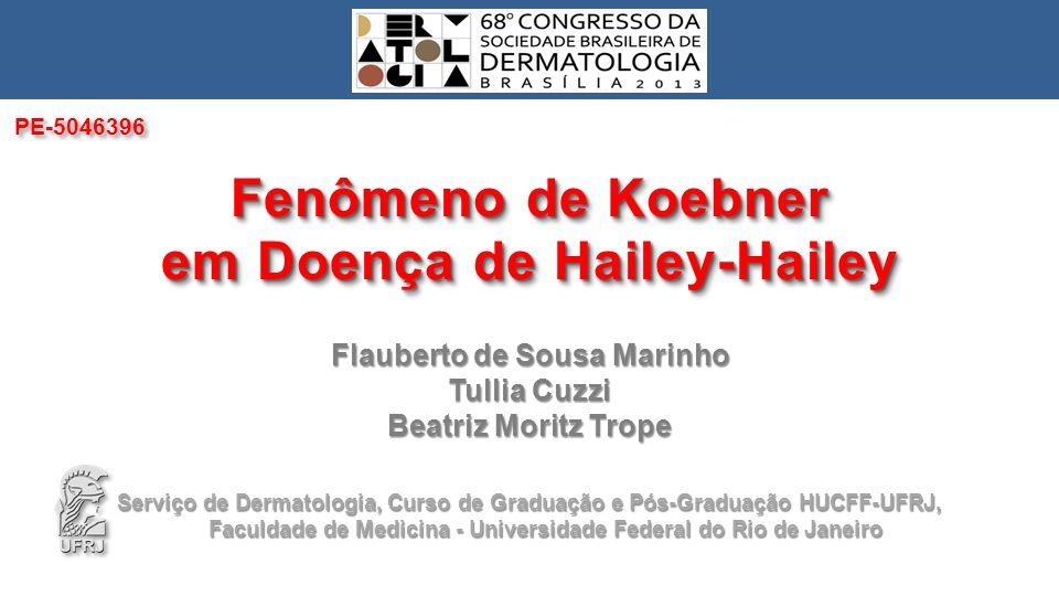 Fenômeno de Koebner em Doença de Hailey-Hailey INTRODUÇÃO A doença de Hailey-Hailey ou pênfigo familiar benigno foi descrita pelos irmãos Hailey em 1939.