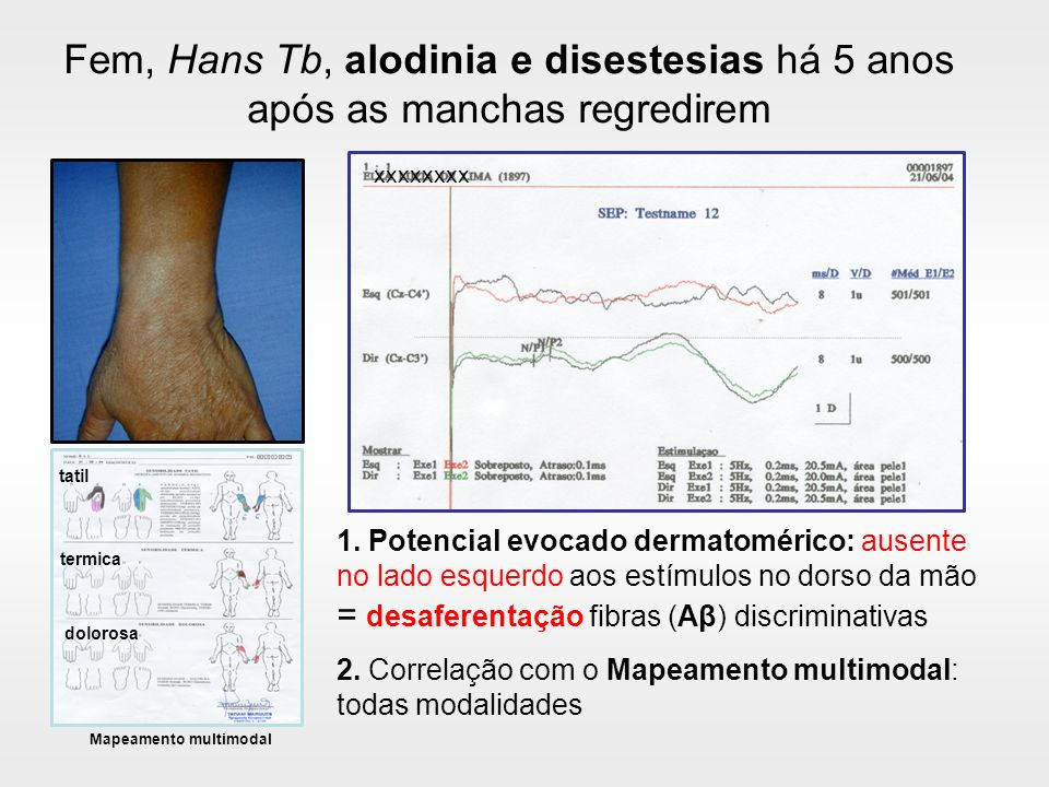 Perda da inervação das organelas discriminativas e reinervação pelas fibras nociceptivas 1 1.