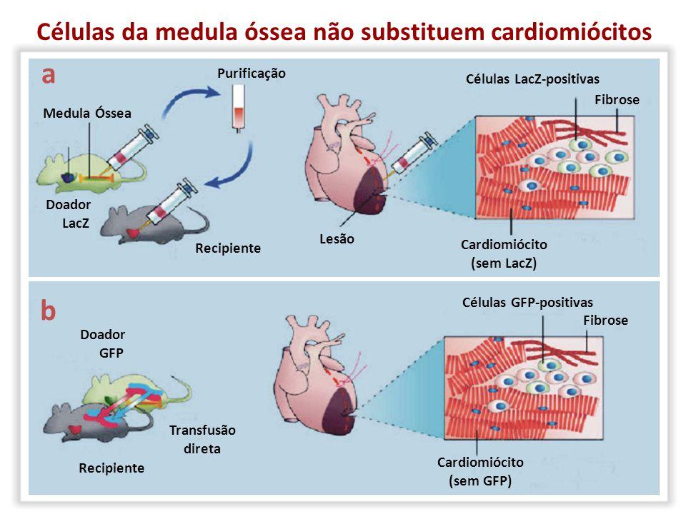 Cardiomiócitos Mioblastos esqueléticos Músculos lisos Fibroblastos Precursores endoteliais Medula óssea (total ou frações) Células-tronco mesenquimais Fontes de Células para Terapia de Doenças Cardíacas Sem sucesso Universidade de São Paulo