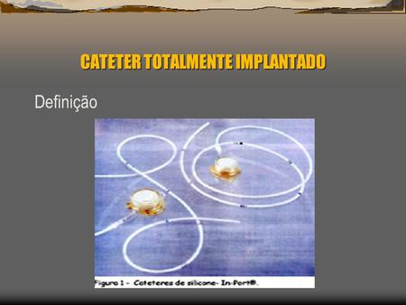 CATETER TOTALMENTE IMPLANTADO Definição. CATETER TOTALMENTE IMPLANTADO.