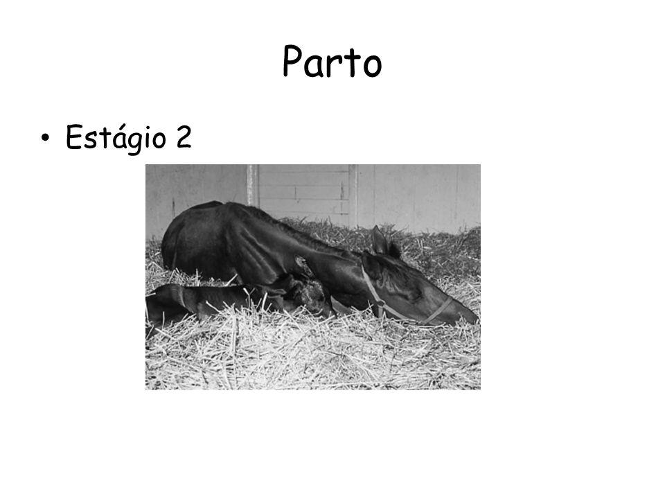 Parto Estágio 3 – Expulsão da placenta 1,5h