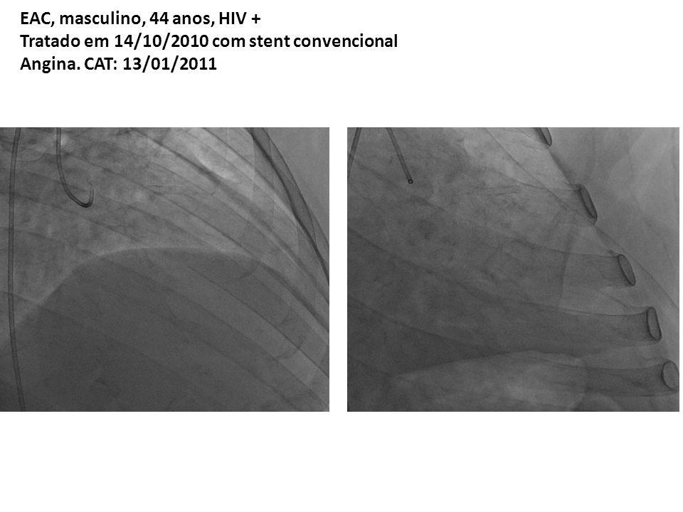 EAC, masculino, 44 anos, HIV + Tratado em 14/10/2010 com stent convencional Angina.