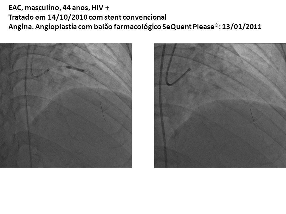 Concluindo: Tratamento Atual da RIS: 1) Avaliar dimensionamento do stent/artéria.