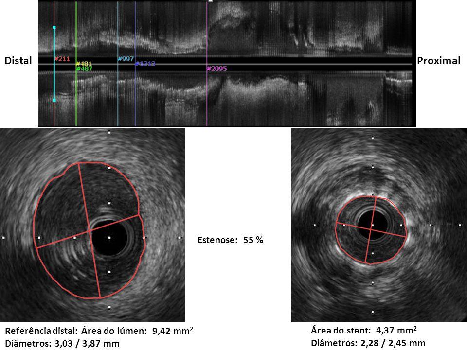 Área mínima do stent pós: 6,65 mm 2 Ganho: 52%
