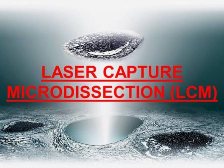 LASER CAPTURE MICRODISSECTION (LCM)