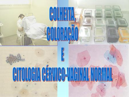 CITOLOGIA CÉRVICO-VAGINAL NORMAL