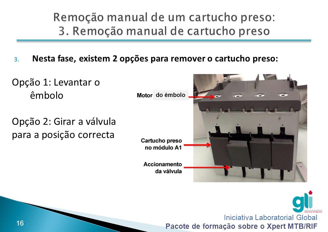 Iniciativa Laboratorial Global Pacote de formação sobre o Xpert MTB/RIF -17- Opção 1: Levantar o êmbolo A.
