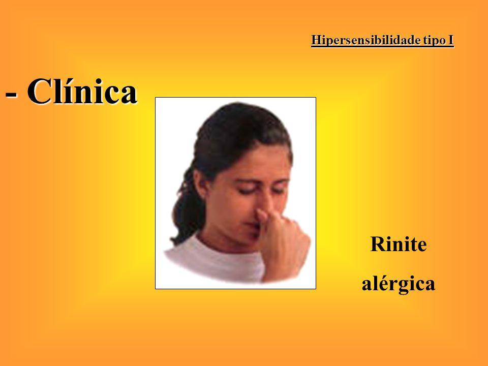 Hipersensibilidade tipo I - Clínica Rinite alérgica