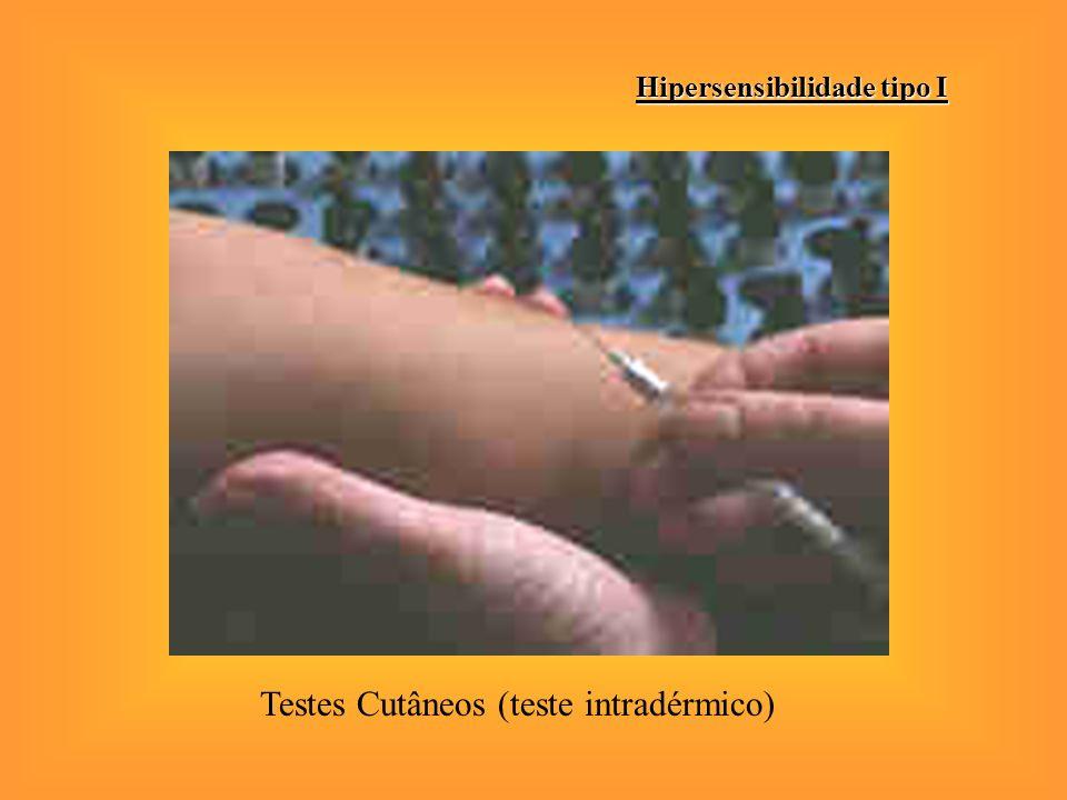 Hipersensibilidade tipo I Testes Cutâneos (teste intradérmico)
