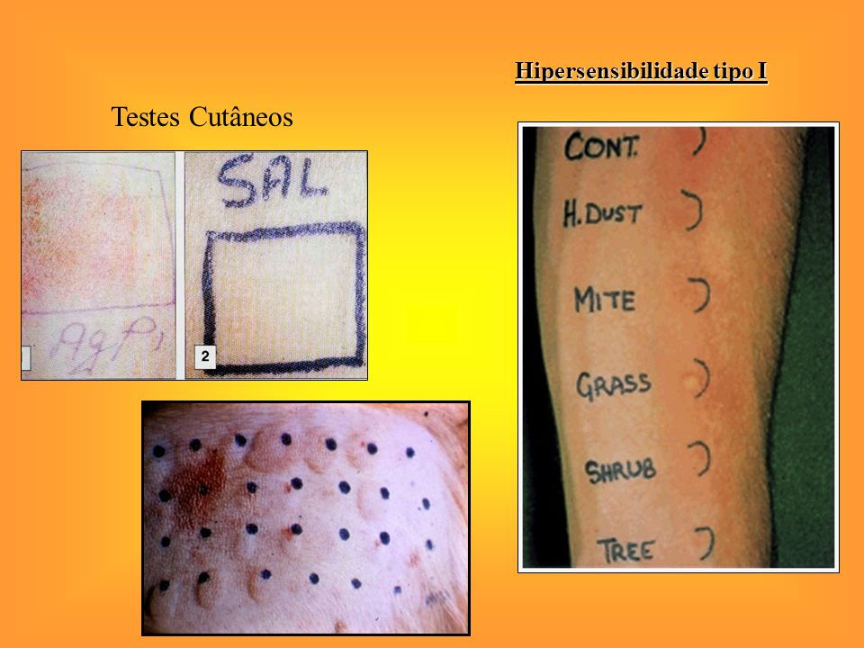 Hipersensibilidade tipo I Testes Cutâneos
