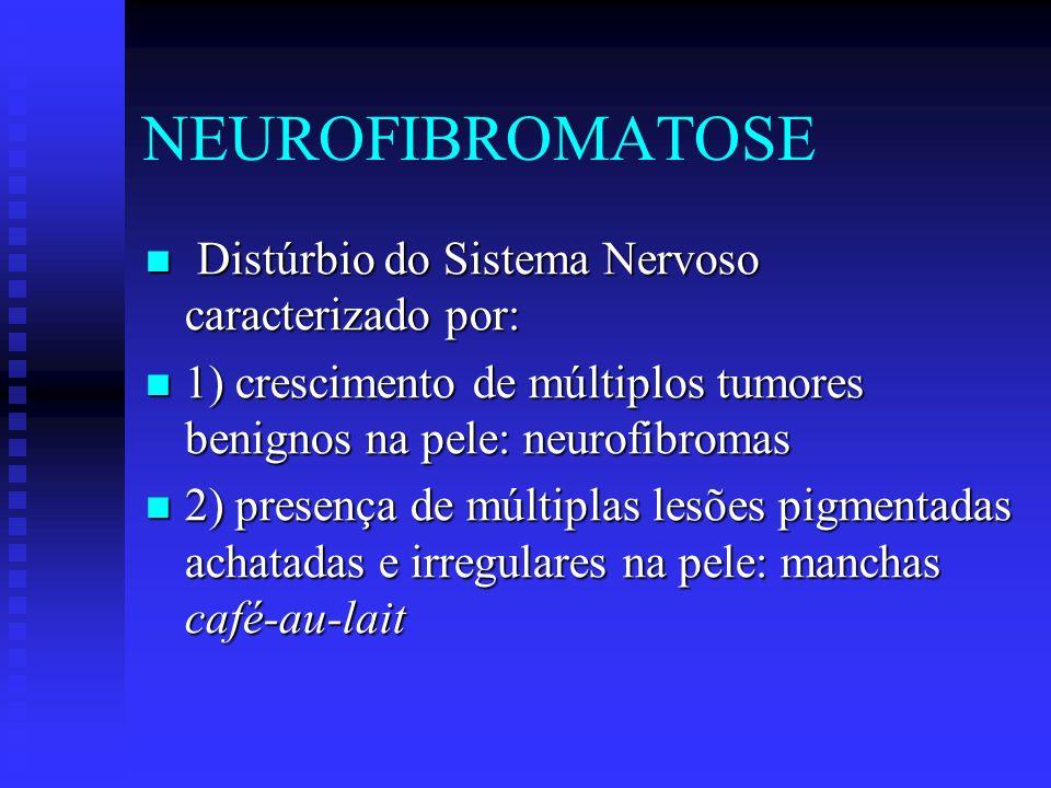 NEUROFIBROMATOSE 3) Crescimento de pequenos tumores benignos (hamartomas) na íris: Nódulos de Lisch 3) Crescimento de pequenos tumores benignos (hamartomas) na íris: Nódulos de Lisch 4) Retardo mental, tumores do SNC, neurofibromas plexiformes difusos e desenvolvimento de câncer do sistema nervoso ou muscular: menos comuns 4) Retardo mental, tumores do SNC, neurofibromas plexiformes difusos e desenvolvimento de câncer do sistema nervoso ou muscular: menos comuns