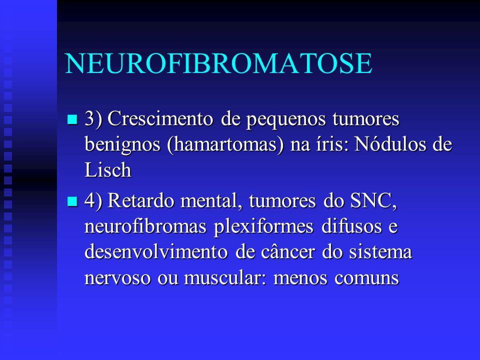 NEUROFIBROMATOSE Adultos: penetrância em heterozigotos quase 100%, mas expressividade variável: alguns tem só manchas outros Nódulos de Lisch, outros tumores.