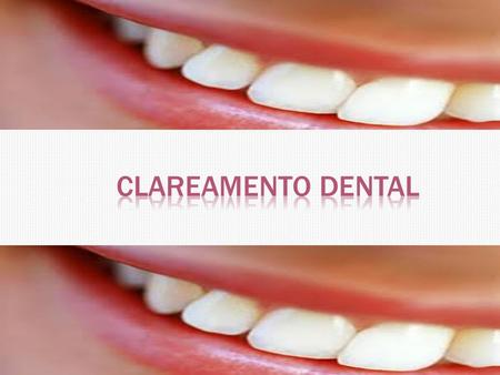 Clareamento Dental.