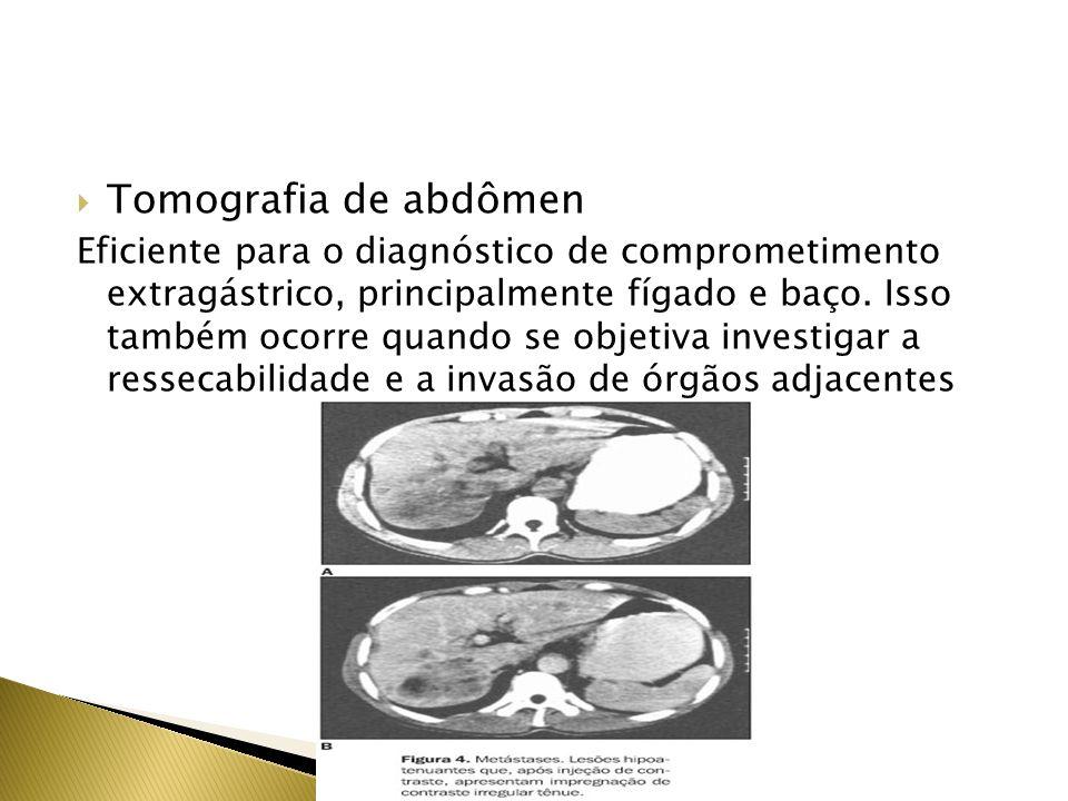Laparoscopia Tem-se mostrado superior à TC na avaliação pré- tratamento do CG,principalmente em metástase peritoneal USG abdominal Na investigação de metástase intra-abdominais USG Laparoscópica Aprimora a detecção de lesões não superficiais