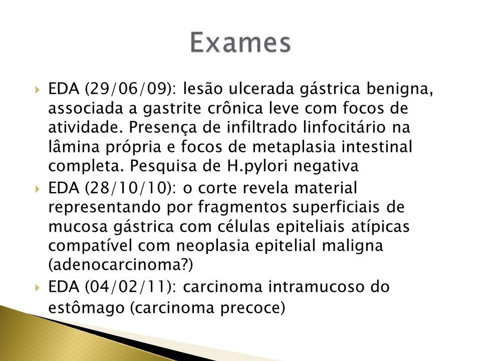 TC de abdômen: sem alteração Laboratório: Hem_4,3;Hg_13,2;Ht_38,6;Leuc_6800; CEA_23,10 RC: ASA II