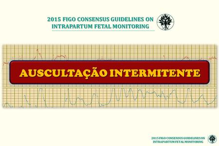 2015 FIGO CONSENSUS GUIDELINES ON INTRAPARTUM FETAL MONITORING AUSCULTAÇÃO INTERMITENTE 2015 FIGO CONSENSUS GUIDELINES ON INTRAPARTUM FETAL MONITORING.