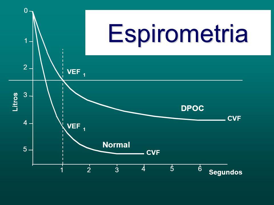 LeveModeradaGraveMuito Grave VEF 1 /CVF < 70% VEF 1 > 80%50 VEF 1 < 80%30 VEF 1 < 50%VEF 1 < 30% Cessação do tabagismo Vacinação anti-gripal / anti-pneumocócica Broncodilatador de curta ação (S/N) Reabilitação Tiotrópio ou β2 de longa ação Tiotrópio e β2 de longa ação +/- Xantina CI se exacerbações 2/ano Antioxidante (?) O 2 Cirurgia