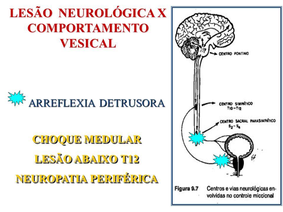 BEXIGA NEUROGÊNICA ARREFLEXA Ausência de Contrações detrusoras Cateterismo Intermitente Limpo