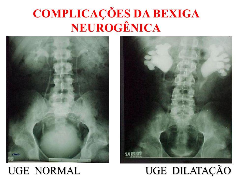 BAIXA COMPLACÊNCIA PRÉ - AMPLIAÇÃO PPD > 40 cm H2O 81% ureterohidronefrose 68% RVU (McGuire) 68% RVU (McGuire)