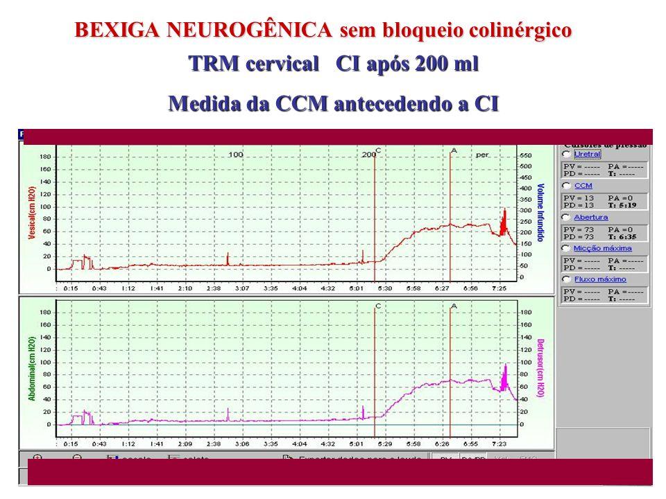 BEXIGA NEUROGÊNICA com bloqueio colinérgico TRM cervical CI após 500 ml e estimulação supra-púbica Armazenamento de baixo risco CÁLCULO DA COMPLACÊNCIA: Complacência =Vol CCM 500 ml / P ves CCM 8 cm H2O = 62 ml/cm H2O Oxibutinina 15 mg