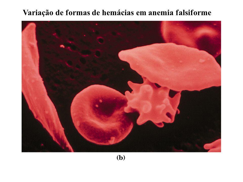 Anemia falsiforme: uma doença molecular Glu6 Val na cadeia beta
