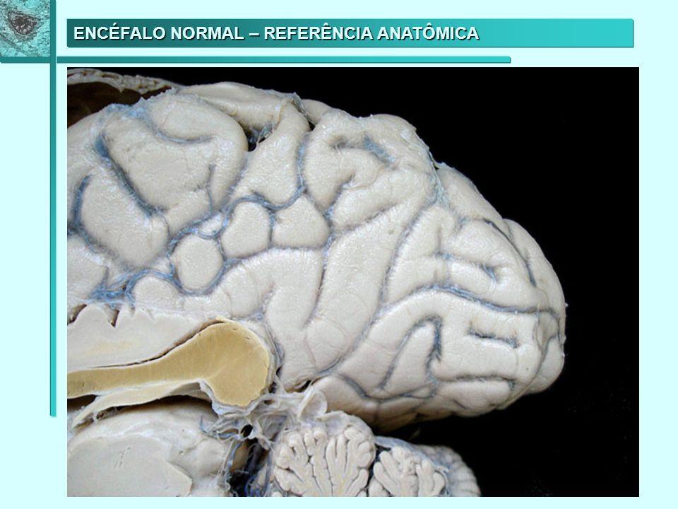 HEMATOMA SUBDURAL BILATERAL SEVERO (perfil) Dura-máter Hematoma
