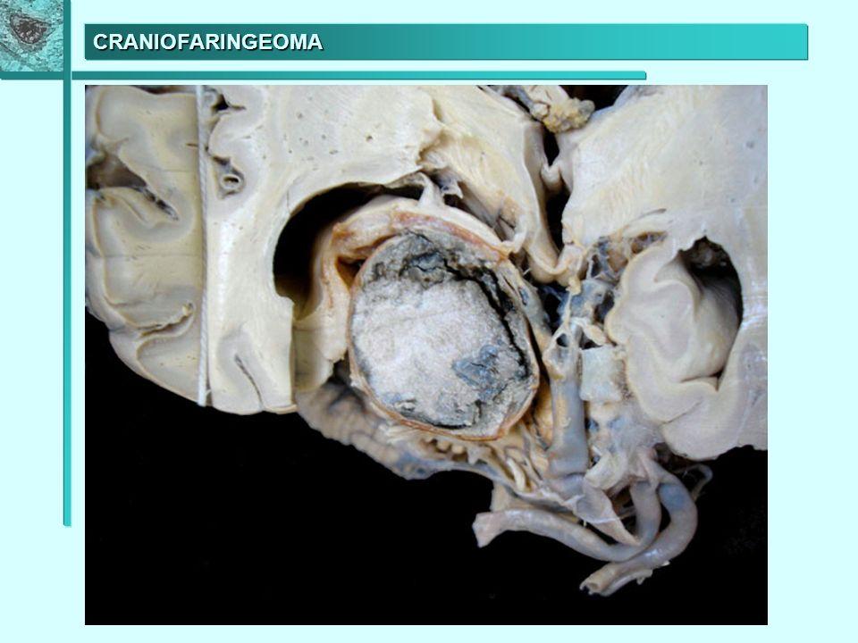 METÁSTASE CEREBRAL DE CARCINOMA DE PULMÃO