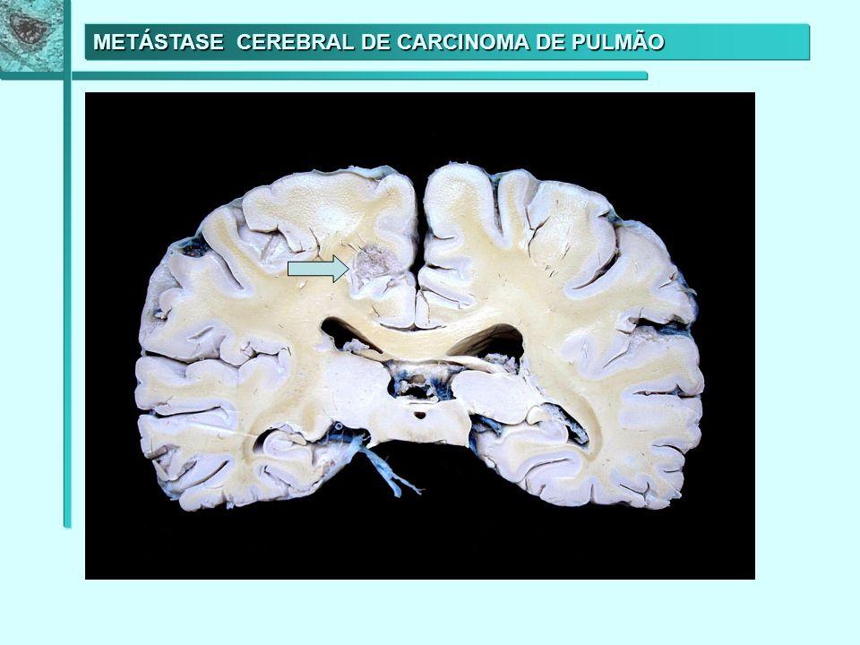 METÁSTASE CEREBRAL DE CARCINOMA DE PULMÃO METÁSTASE CEREBRAL DE CARCINOMA DE PULMÃO
