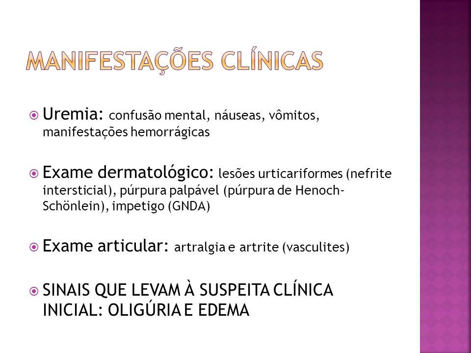 EAS Hemograma Bioquímica Uréia, Creatinina Gasometria arterial Clearence de creatinina (fórmula de Schwartz) ECG Rx de tórax: cardiomegalia e congestão pulmonar (sobrecarga hídrica) US renal: hidronefrose e/ou hidroureter (obstrução do trato urinário) Biópsia renal Fórmula de Schwartz (clearence de creatinina estimado em mL/min/1,73m2) Estatura (cm) X K Creatinina sérica Valor de K: -RN pré-termo até 1 ano: 0,33 -RN a termo até 1 ano: 0,45 -Crianças e adolescentes: 0,55