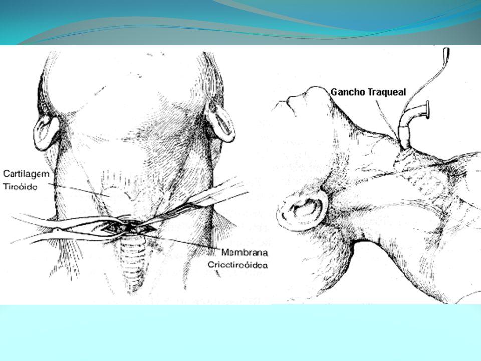 Complicações Asfixia Aspiração (de sangue) Celulite Criação de falso trajeto nos tecidos Estenose de laringe Hematoma/hemorragia Laceração do esôfago e traquéia Enfisema mediastinal Paralisia das cordas vocais.