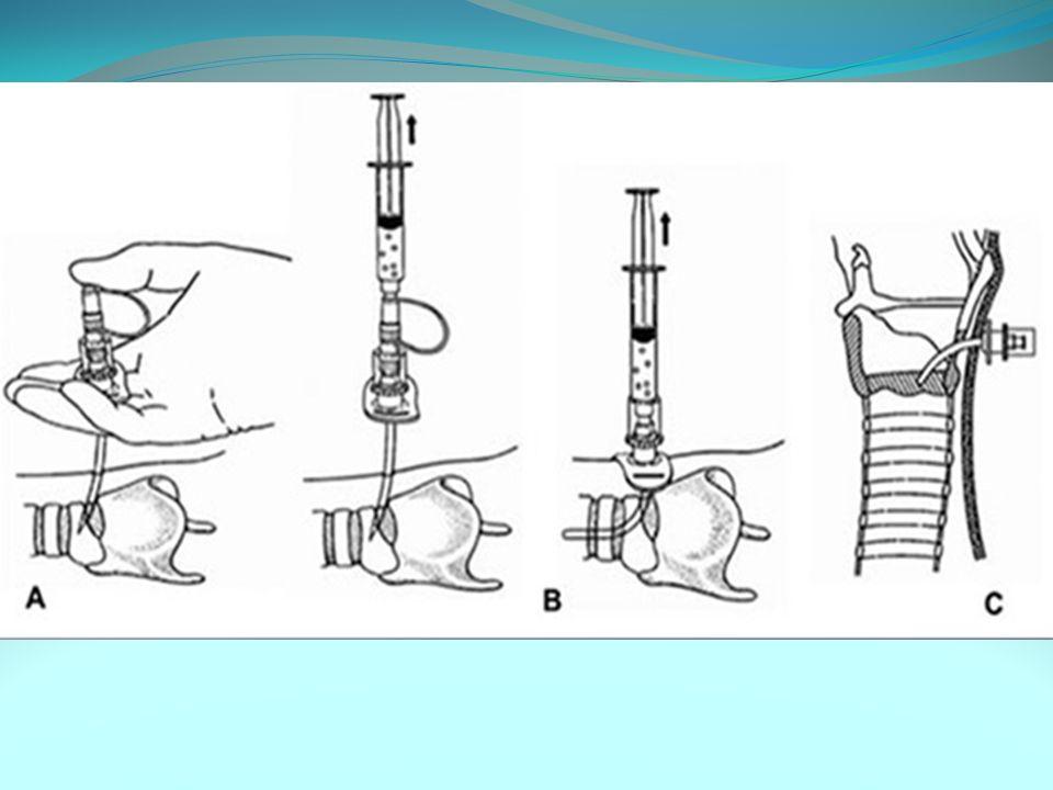 BIBLIOGRAFIA MORI,Newton Djin.Cricotireoidostomia e Trauma.In.:Clínica Cirúrgica – Fundamentos Teóricos e práticos.Vol.1.Atheneu.2002.p.376-379.