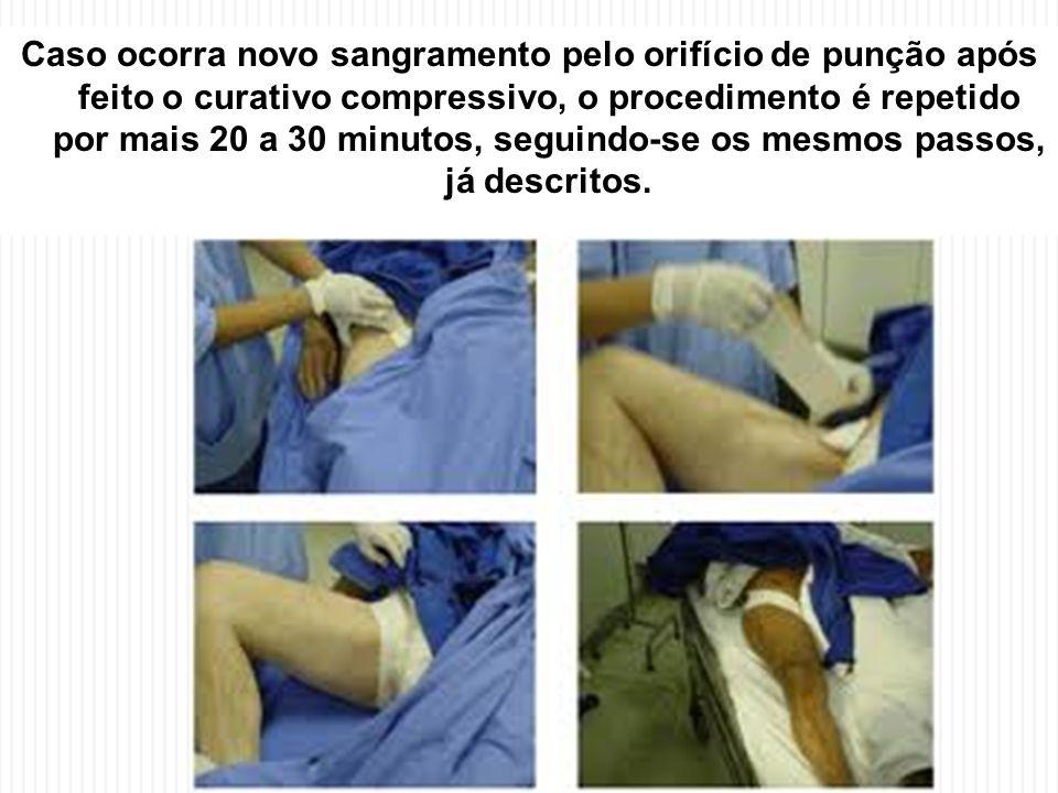 Caso ocorra novo sangramento pelo orifício de punção após feito o curativo compressivo, o procedimento é repetido por mais 20 a 30 minutos, seguindo-se os mesmos passos, já descritos.