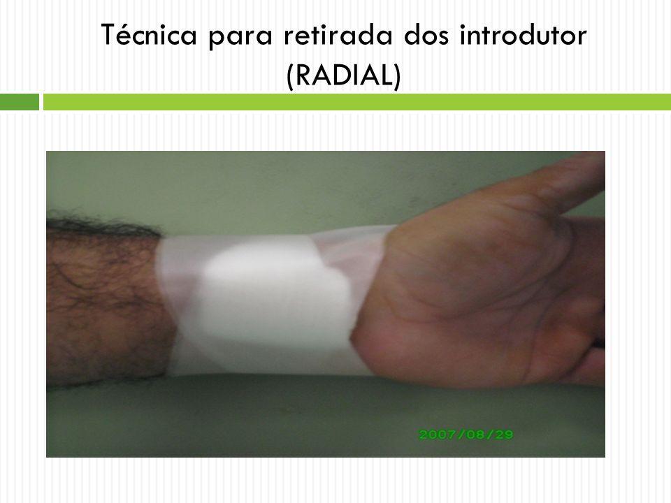 Técnica para retirada dos introdutor (RADIAL)