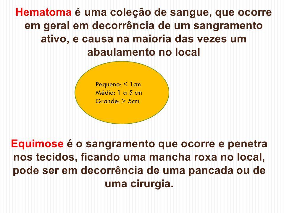 Hematoma é uma coleção de sangue, que ocorre em geral em decorrência de um sangramento ativo, e causa na maioria das vezes um abaulamento no local