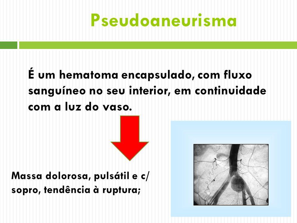 Pseudoaneurisma É um hematoma encapsulado, com fluxo sanguíneo no seu interior, em continuidade com a luz do vaso.