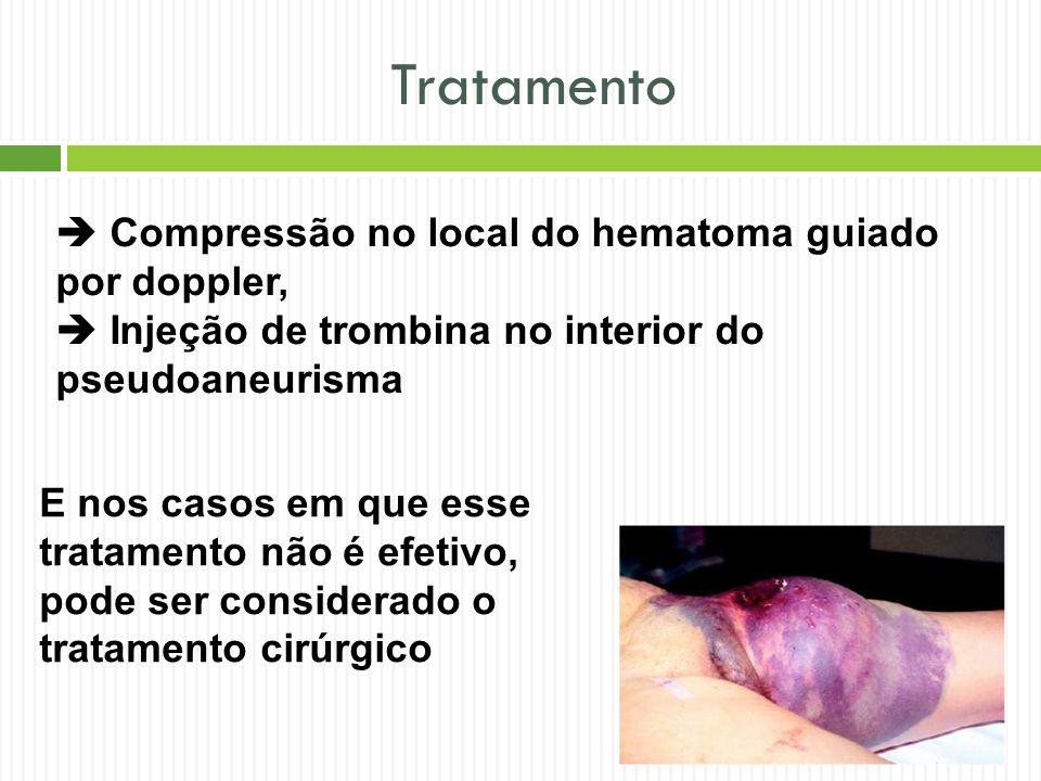 Tratamento  Compressão no local do hematoma guiado por doppler,