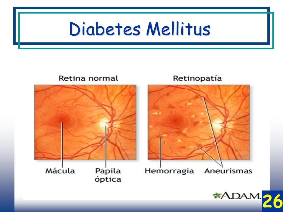 Diabetes Mellitus 26