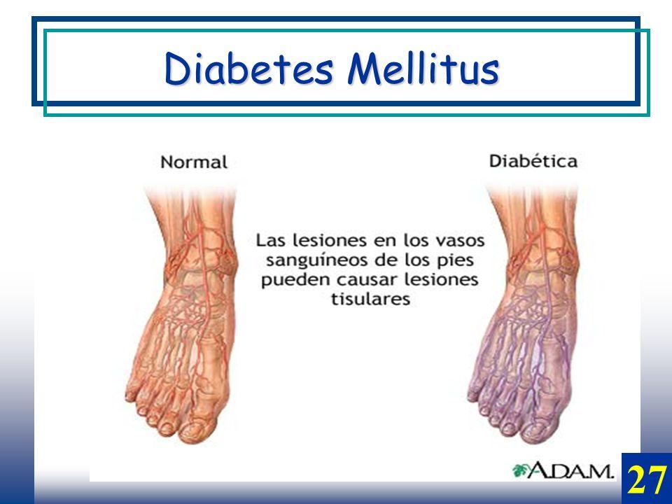 Diabetes Mellitus 27