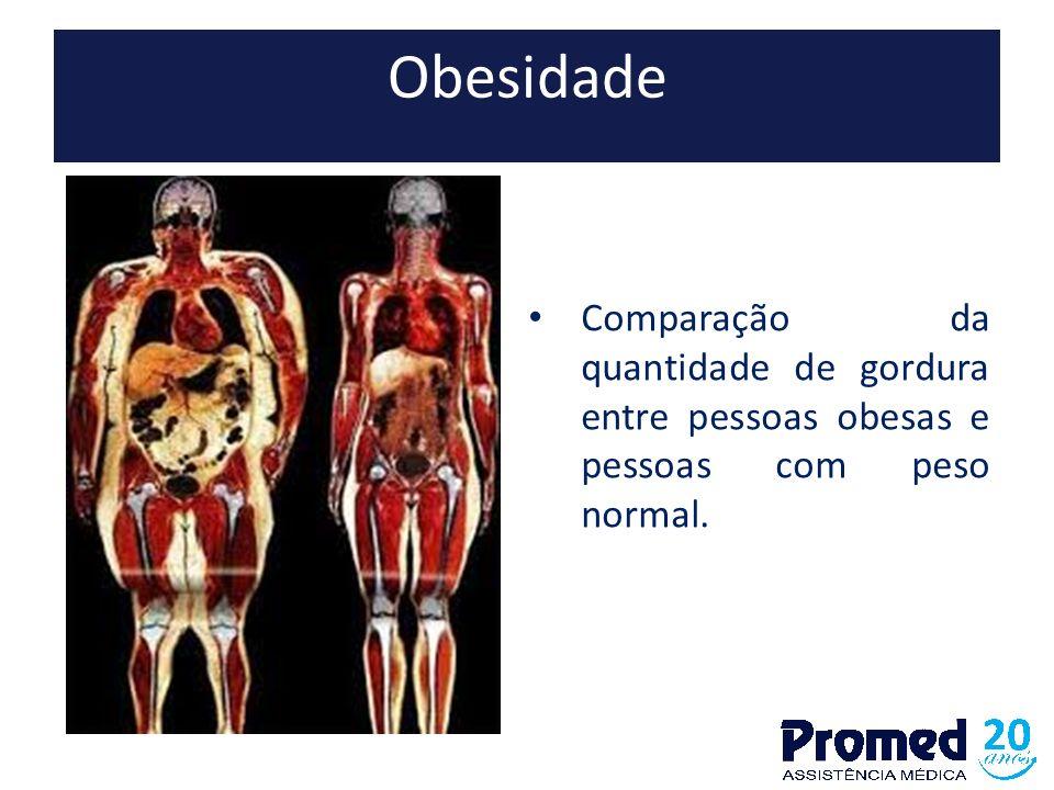 Obesidade Comparação da quantidade de gordura entre pessoas obesas e pessoas com peso normal.