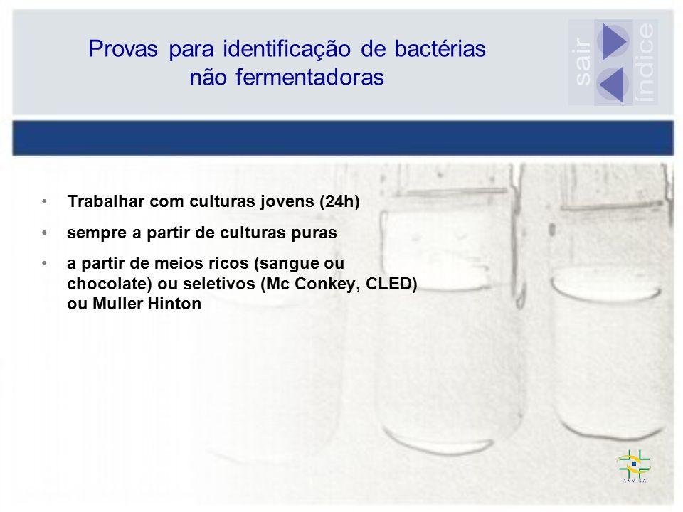 Provas para identificação de bactérias não fermentadoras
