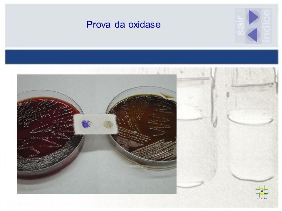 Prova da oxidase sair índice