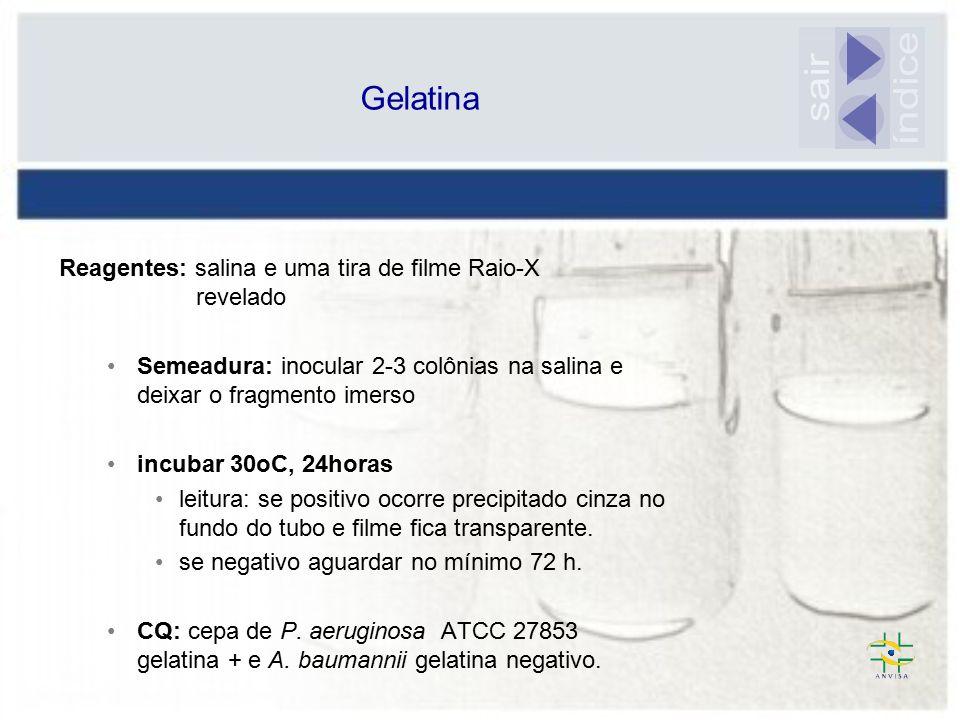 Gelatina sair. índice. Reagentes: salina e uma tira de filme Raio-X revelado.