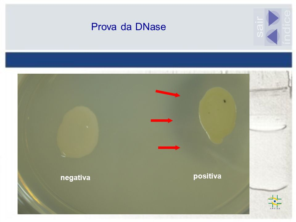 Prova da DNase sair índice negativa positiva