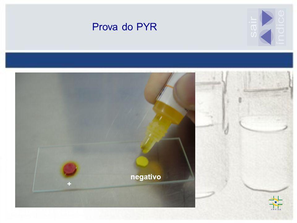 Prova do PYR sair índice negativo +
