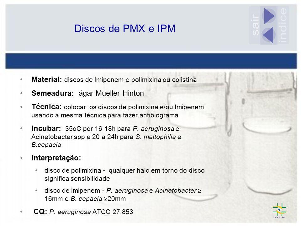 índice sair Discos de PMX e IPM