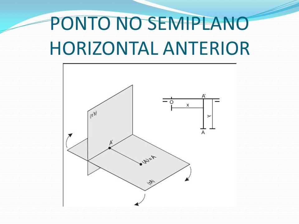 PONTO NO SEMIPLANO HORIZONTAL ANTERIOR