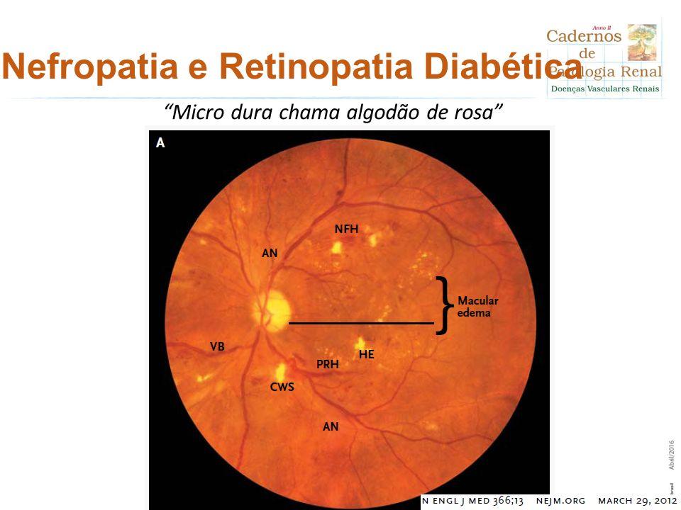 Nefropatia e Retinopatia Diabética