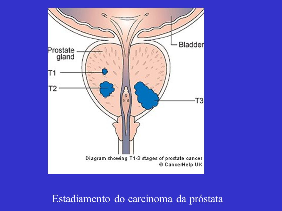 Estadiamento do carcinoma da próstata