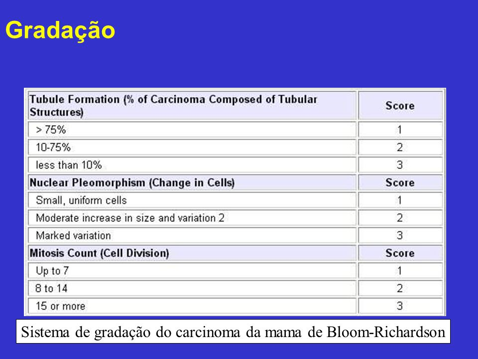 Sistema de gradação do carcinoma da mama de Bloom-Richardson